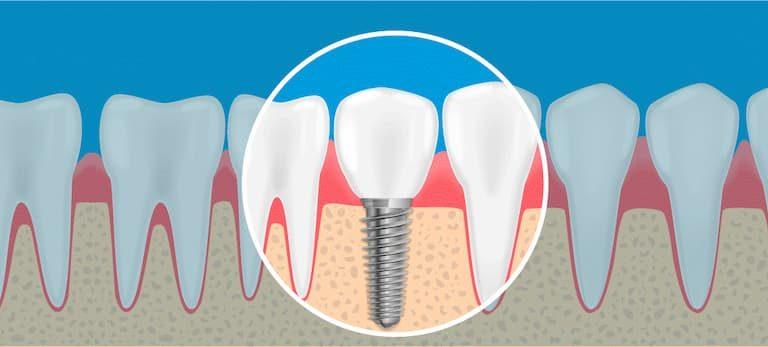 O que é implante dentário e como é feito